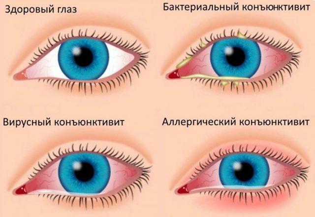 Глаза слезятся примета