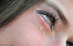 Глаз слезится и болит - причины, что делать