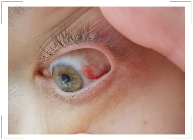 Покраснение глаз - причины и лечение, что делать