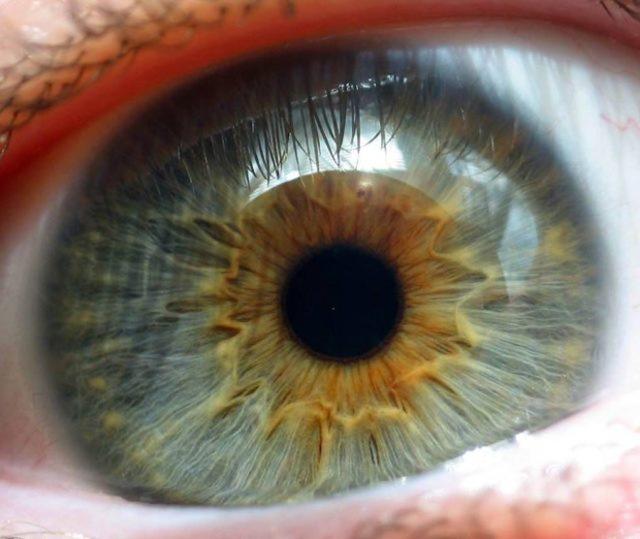 Атрофия сетчатки глаза - что это, лечение, причины и симптомы