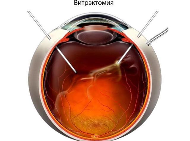 Фиброз глаза - что это, симптомы и лечение