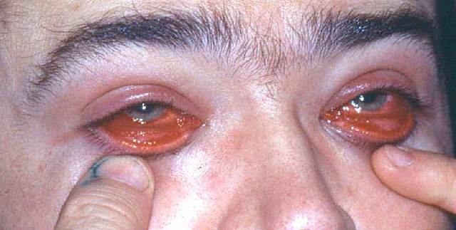Аденовирусный кератоконъюнктивит - что это, симптомы и лечение