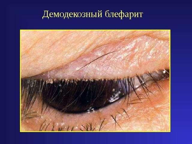 Блефарит - лечение в домашних условиях