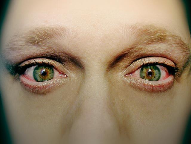 Блефароконъюнктивит - что это, причины и лечение