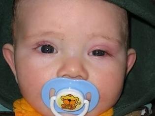 Дакриоцистит у новорожденных - причины, лечение, последствия