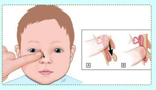 Зондирование слезного канала у новорожденных и детей до года