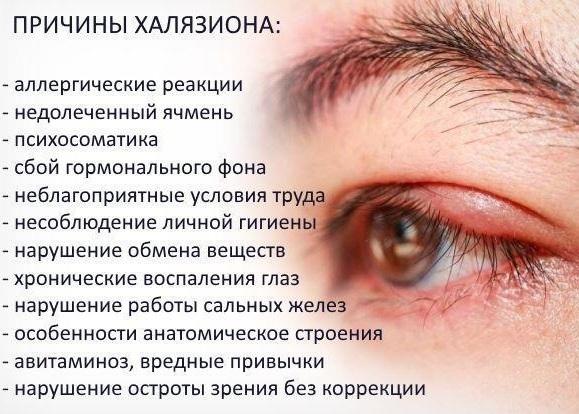 Наросты на веках глаз - что это, все причины