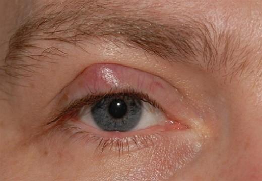 Жировики на веках глаз - как убрать, все способы