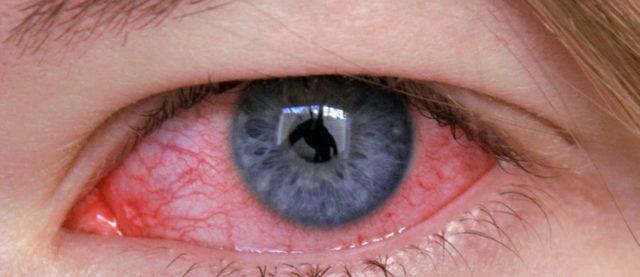 Аллергический риноконъюнктивит - что это, симптомы, причины и лечение