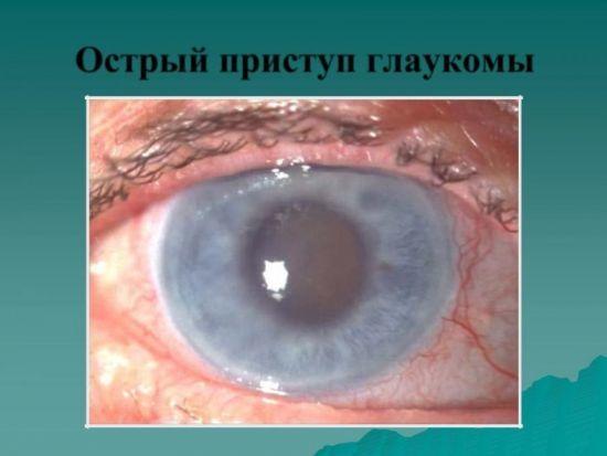 Закрытоугольная и открытоугольная глаукома - отличия, в чем разница