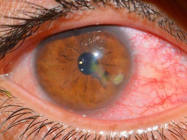 Ушиб глазного яблока - первая помощь, последствия, лечение