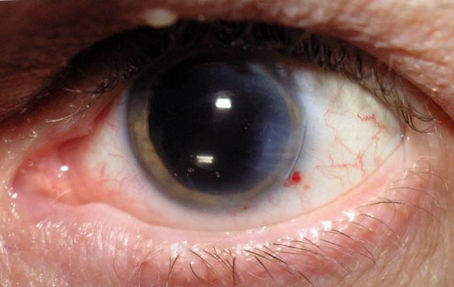 Вторичная катаракта после замены хрусталика - лечение