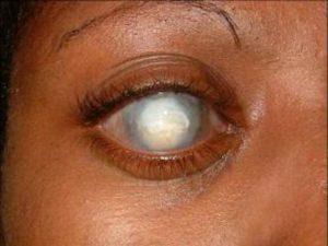 Бельмо на глазу у человека - фото, причины, симптомы и лечение