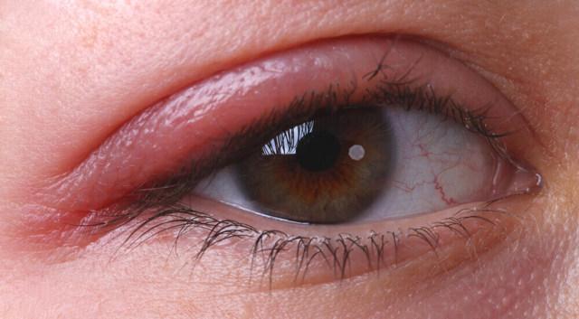 Ангулярный блефарит - симптомы и лечение