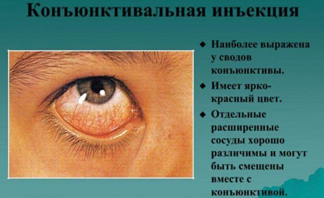 Гиперемия конъюнктивы - что это, причины и лечение