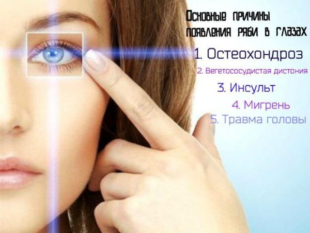 Рябит в глазах - что это, причины и лечение