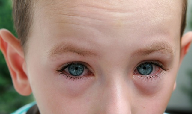 Аллергический конъюнктивит - как лечить, симптомы и причины