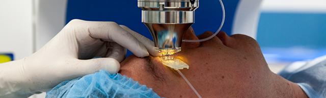 Гало эффект после лазерной коррекции - что это, как выглядит, лечение