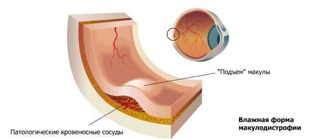 Возрастная макулодистрофия сетчатки глаза (ВМД) - лечение влажной и сухой формы