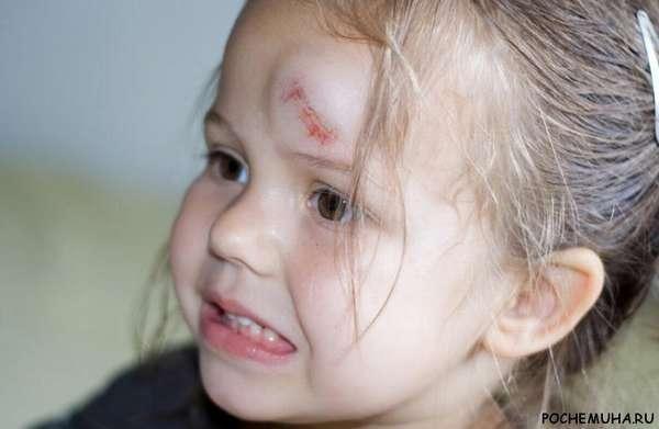 Чем мазать синяк под глазом у ребенка