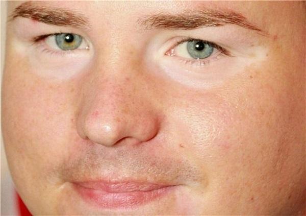 Белые круги вокруг глаз - причина, лечение