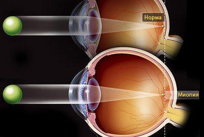 Эхобиометрия глаза - что это, проведение