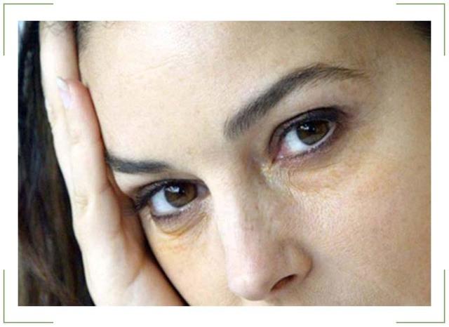 Желтые круги под глазами - причины, лечение