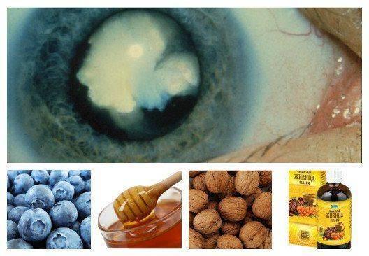 Катаракта - лечение народными средствами в домашних условиях без операции