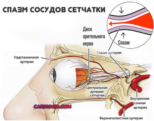 Ангиопатия сетчатки - что это, лечение, виды, причины и симптомы