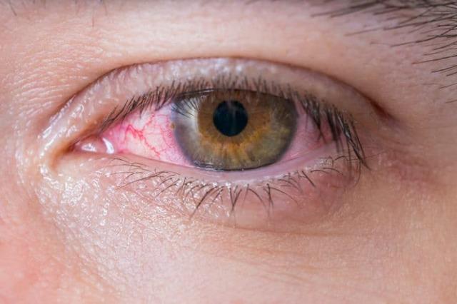 Воспаление роговицы глаза - что это, лечение, последствия