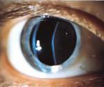 Заболевания хрусталика глаза