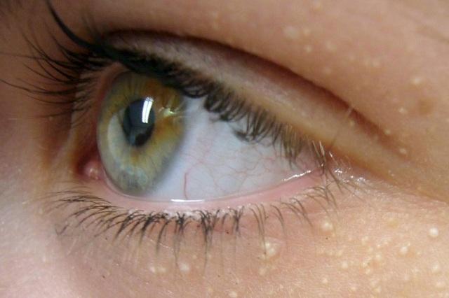 Белые пупырышки (просянка) под глазами - фото, как убрать