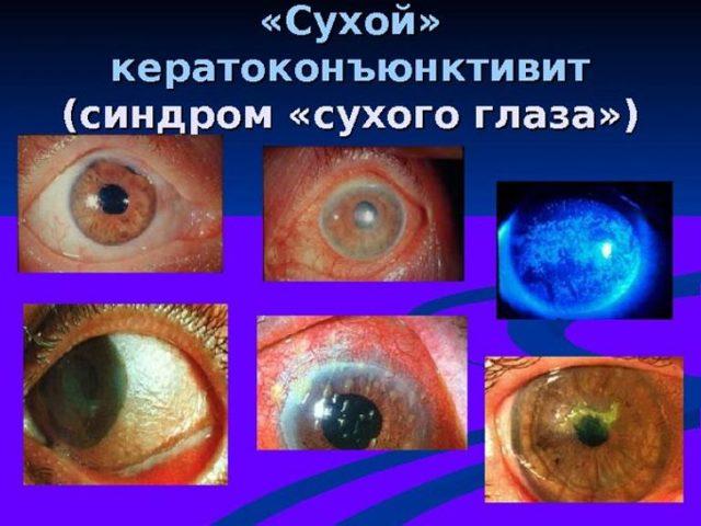 Кератоконъюнктивит - что это, причины и лечение