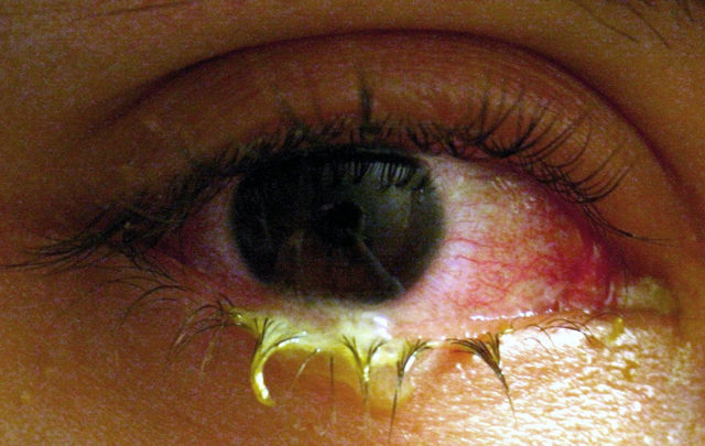 Бактериальный конъюнктивит - лечение, фото, симптомы, причины