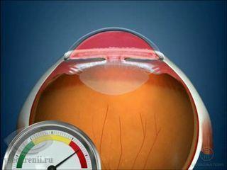 Близорукость одного глаза - причины односторонней миопии