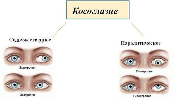 Глаза смотрят в разные стороны - что это