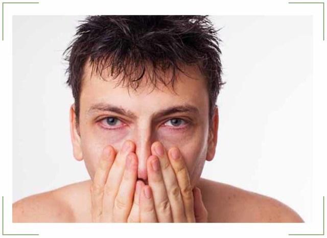 Темные круги под глазами у мужчин - причины каких болезней