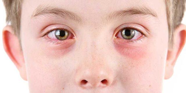 Вирусный конъюнктивит у детей - лечение, причины, симптомы