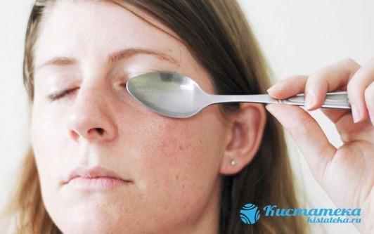 Атерома на веке глаза - фото, причины, лечение, последствия
