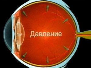 Глазное давление - симптомы и лечение, норма