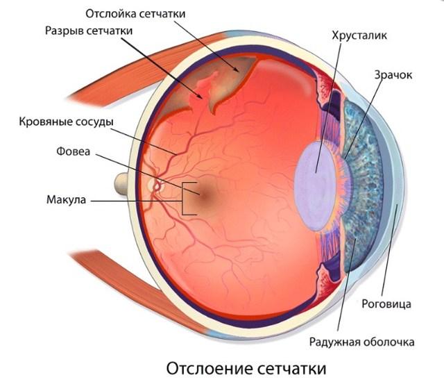 Искры перед глазами - что это, лечение, причины и симптомы