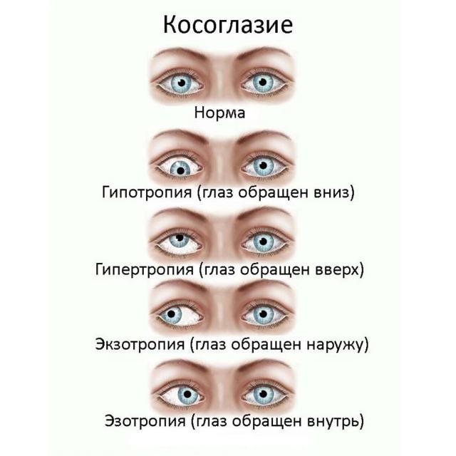 Эзотропия - что это, причины и лечение