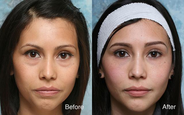 Грыжи под глазами - как избавиться от них без операции